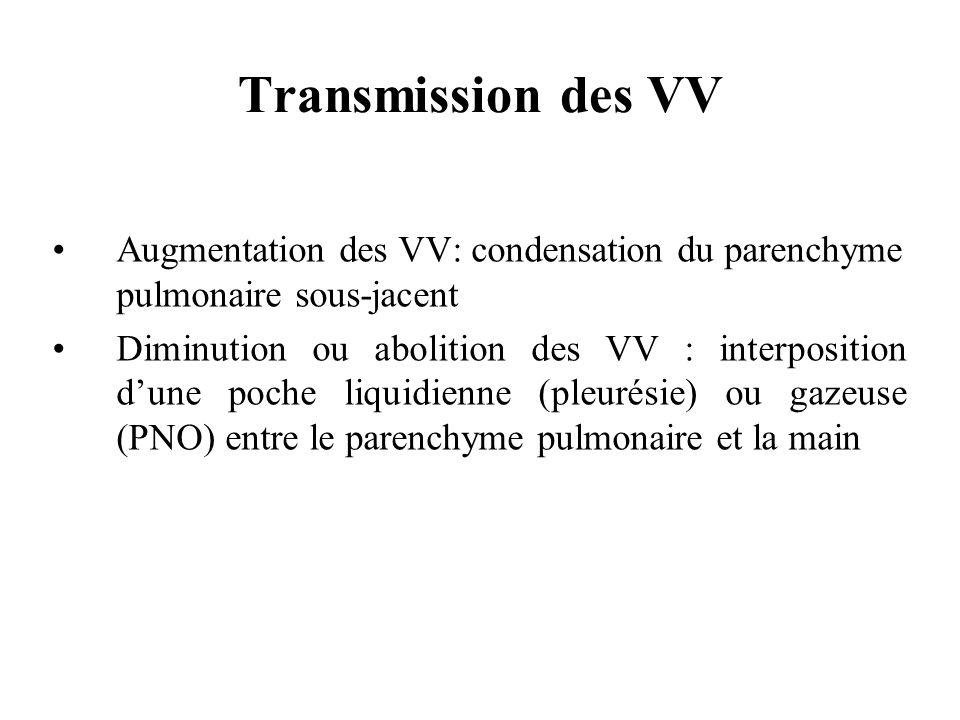 Augmentation des VV: condensation du parenchyme pulmonaire sous-jacent Diminution ou abolition des VV : interposition dune poche liquidienne (pleurési