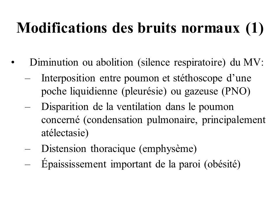 Diminution ou abolition (silence respiratoire) du MV: –Interposition entre poumon et stéthoscope dune poche liquidienne (pleurésie) ou gazeuse (PNO) –