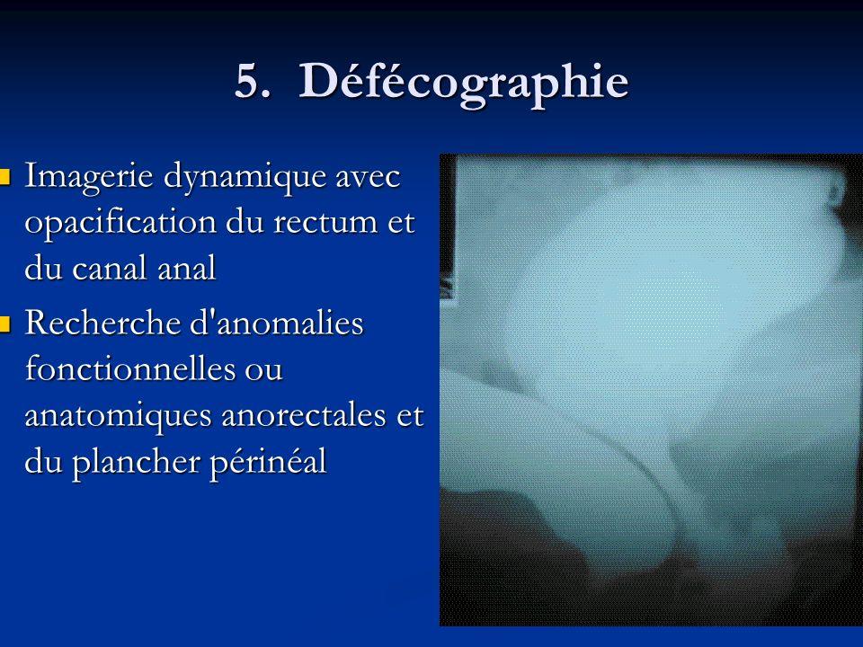 5. Défécographie Imagerie dynamique avec opacification du rectum et du canal anal Imagerie dynamique avec opacification du rectum et du canal anal Rec