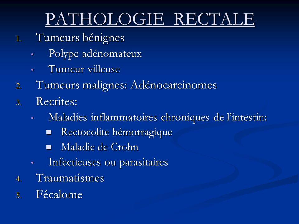 PATHOLOGIE RECTALE 1. Tumeurs bénignes Polype adénomateux Polype adénomateux Tumeur villeuse Tumeur villeuse 2. Tumeurs malignes: Adénocarcinomes 3. R