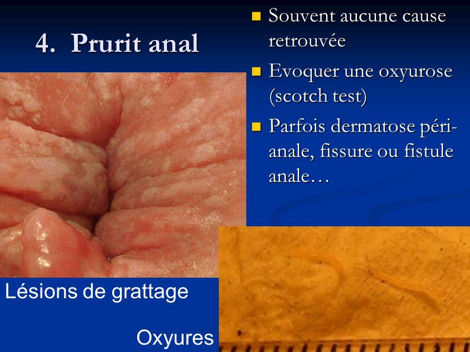 4. Prurit anal Souvent aucune cause retrouvée Souvent aucune cause retrouvée Evoquer une oxyurose (scotch test) Evoquer une oxyurose (scotch test) Par