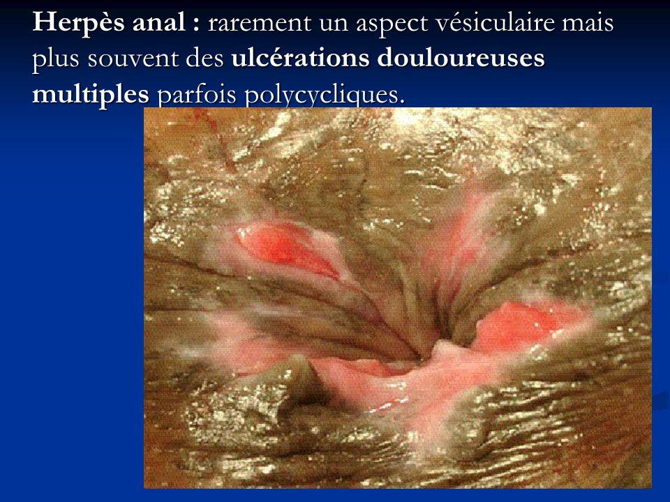 Herpès anal : rarement un aspect vésiculaire mais plus souvent des ulcérations douloureuses multiples parfois polycycliques.