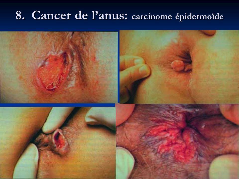 8. Cancer de lanus: carcinome épidermoïde
