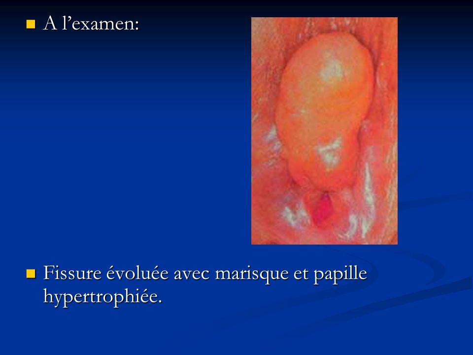 Fissure évoluée avec marisque et papille hypertrophiée. Fissure évoluée avec marisque et papille hypertrophiée.