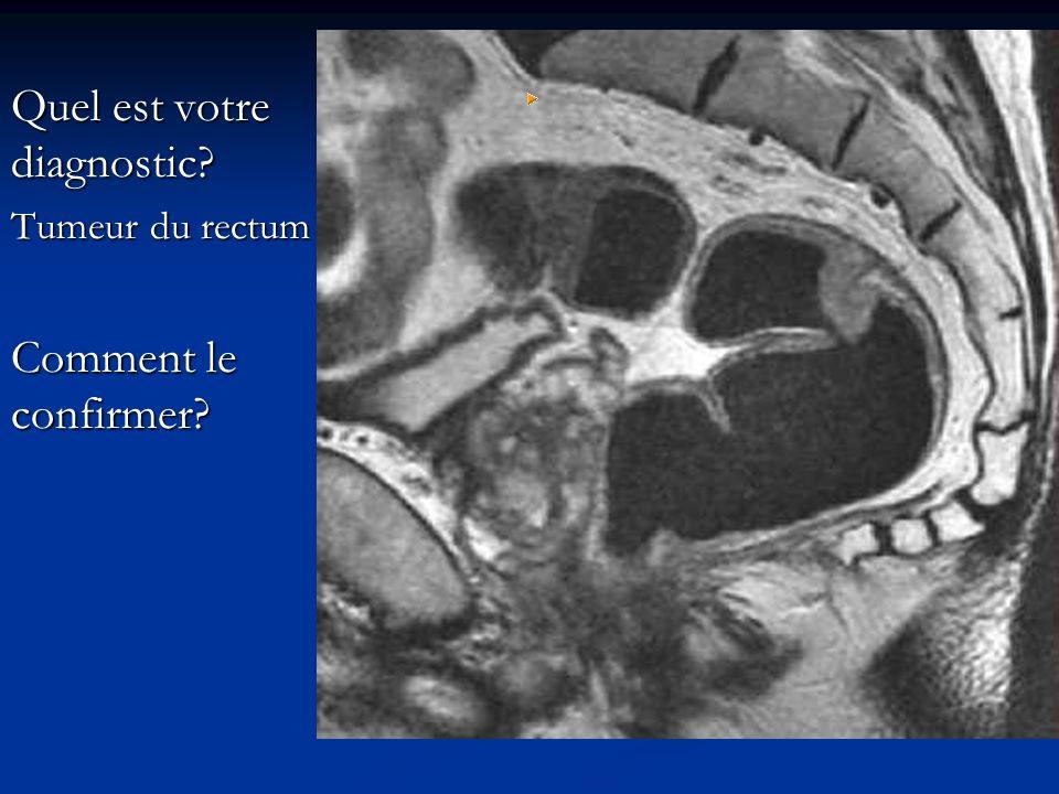 Quel est votre diagnostic? Tumeur du rectum Comment le confirmer?