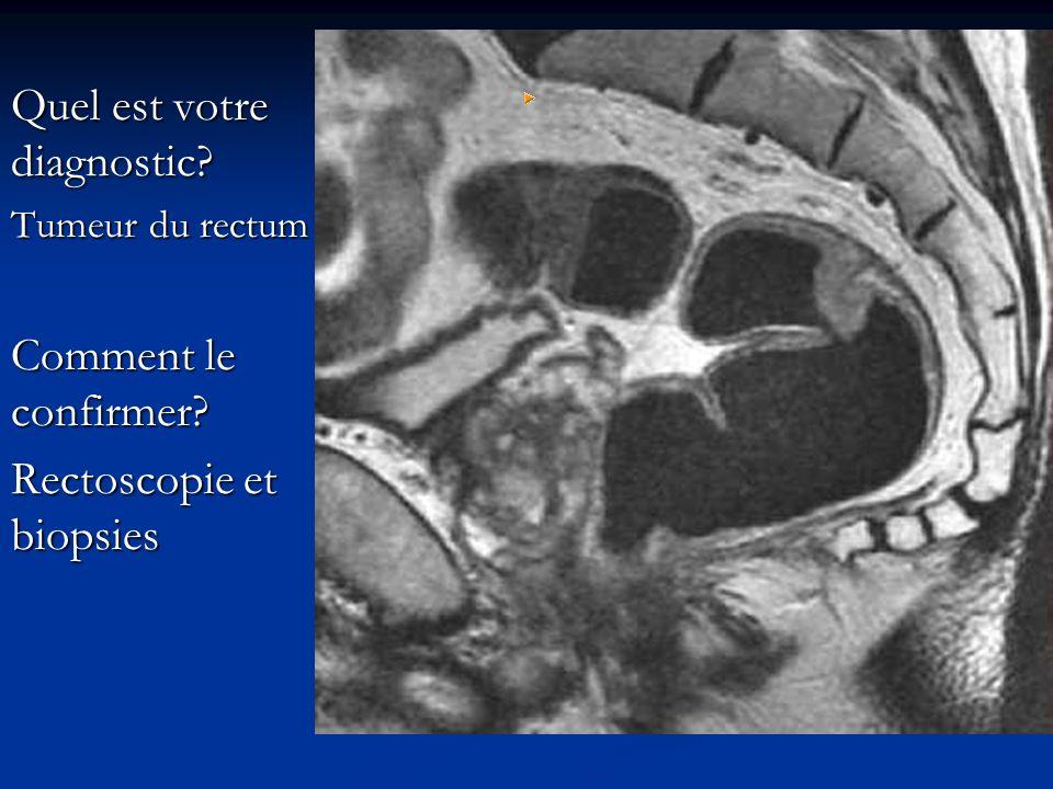 Quel est votre diagnostic? Tumeur du rectum Comment le confirmer? Rectoscopie et biopsies