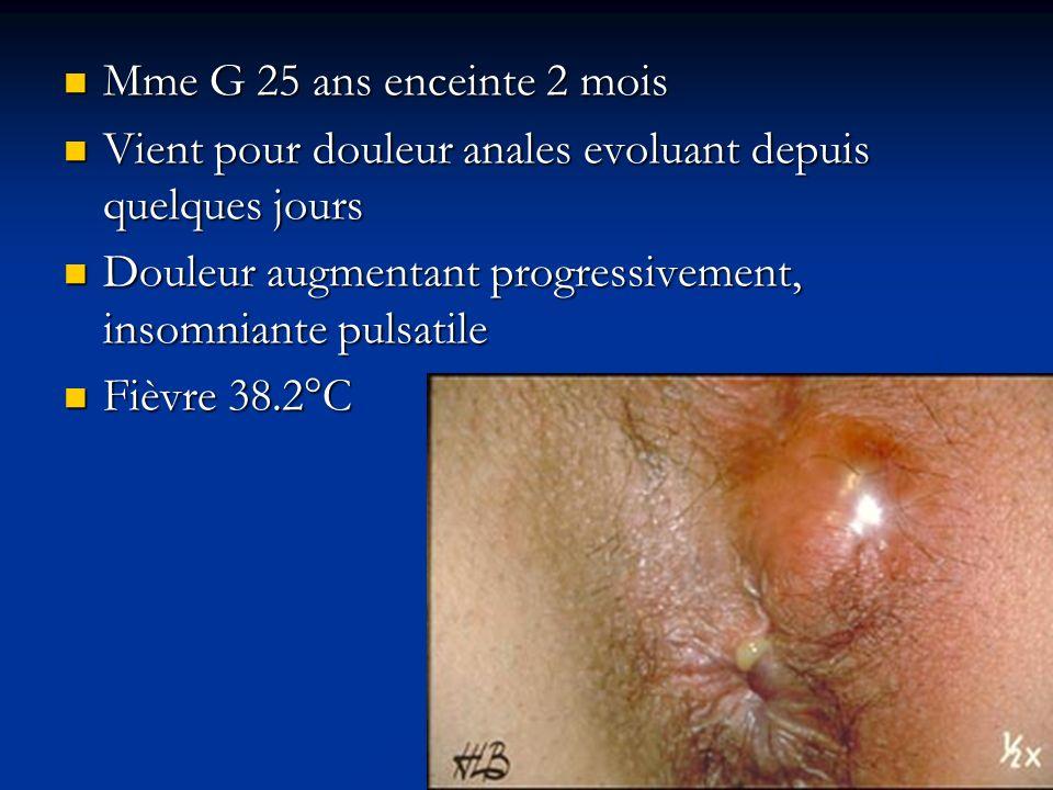 Mme G 25 ans enceinte 2 mois Mme G 25 ans enceinte 2 mois Vient pour douleur anales evoluant depuis quelques jours Vient pour douleur anales evoluant