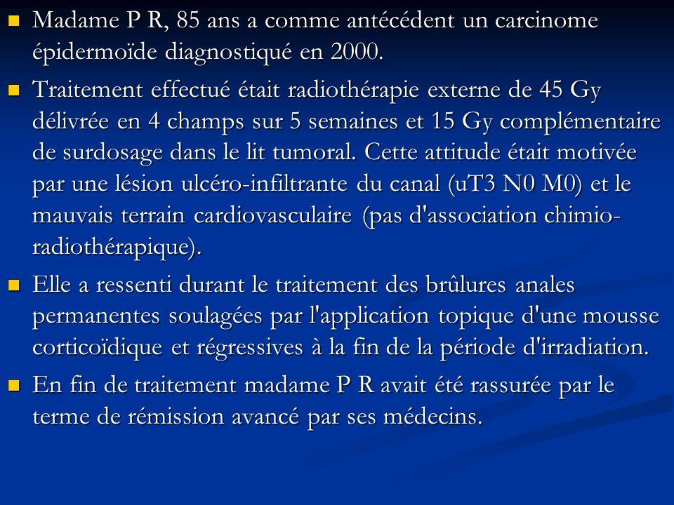 Madame P R, 85 ans a comme antécédent un carcinome épidermoïde diagnostiqué en 2000. Madame P R, 85 ans a comme antécédent un carcinome épidermoïde di