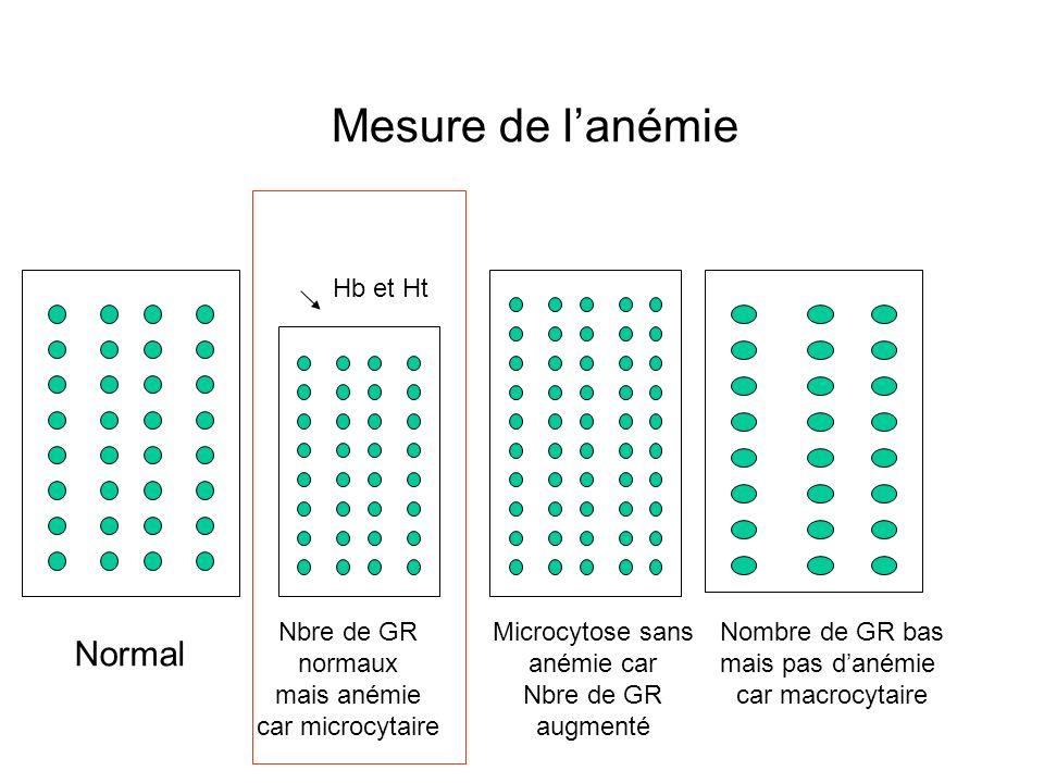 Mesure de lanémie Normal Nbre de GR normaux mais anémie car microcytaire Nombre de GR bas mais pas danémie car macrocytaire Hb et Ht Microcytose sans