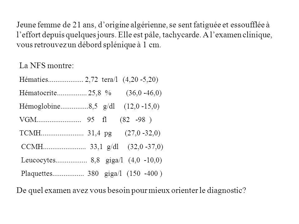 La NFS montre: Hématies................... 2,72 tera/l (4,20 -5,20) Hématocrite................ 25,8 % (36,0 -46,0) Hémoglobine...............8,5 g/dl