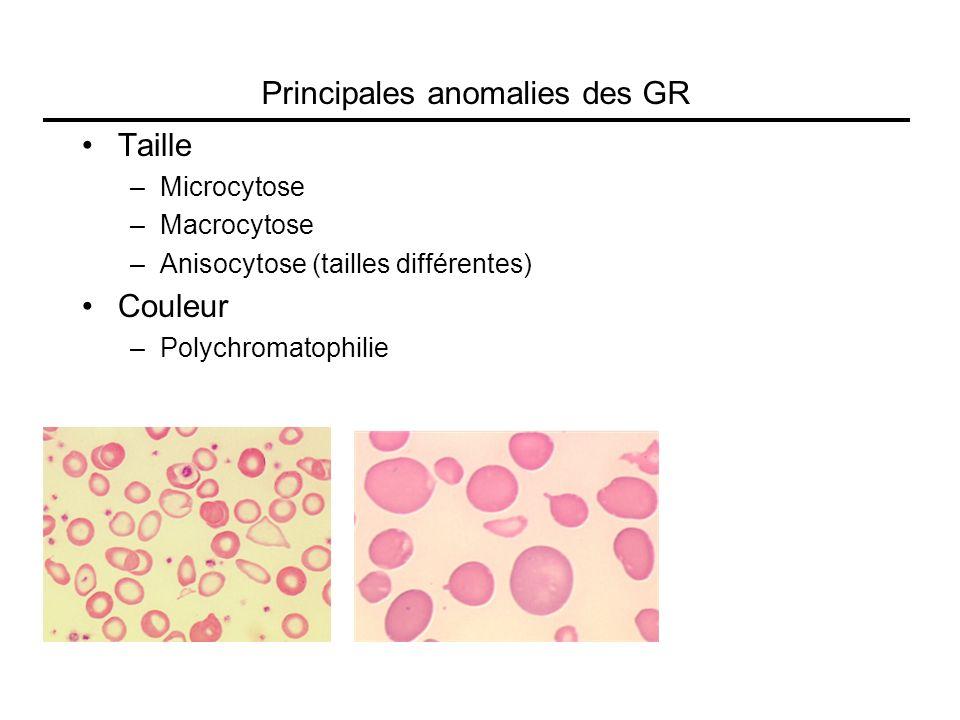 Principales anomalies des GR Taille –Microcytose –Macrocytose –Anisocytose (tailles différentes) Couleur –Polychromatophilie
