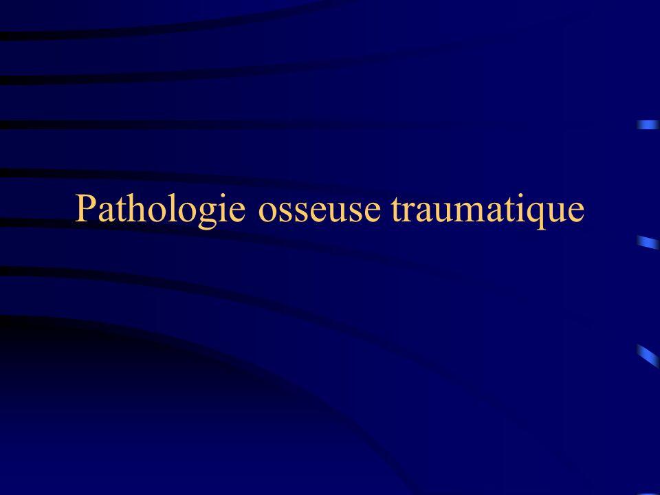 Pathologie osseuse traumatique