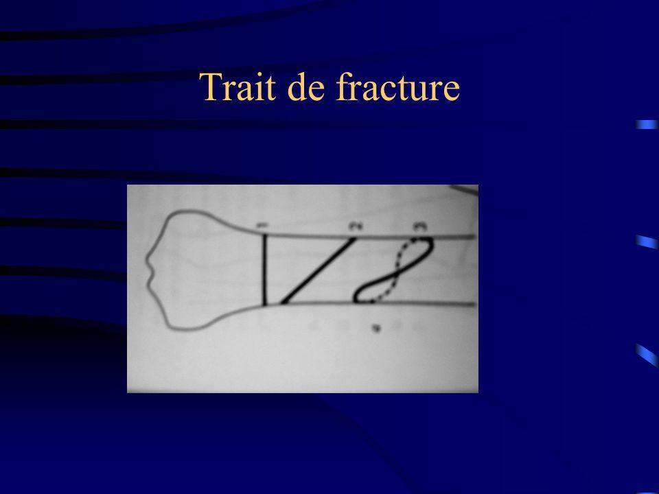 Trait de fracture
