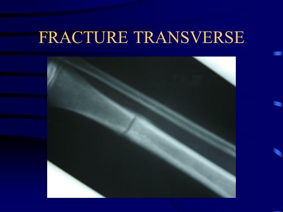 FRACTURE TRANSVERSE