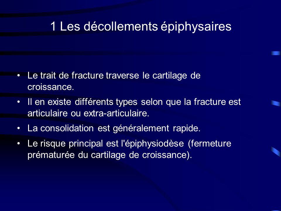 1 Les décollements épiphysaires Le trait de fracture traverse le cartilage de croissance. Il en existe différents types selon que la fracture est arti