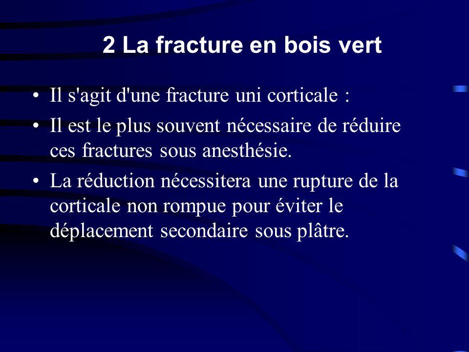 2 La fracture en bois vert Il s'agit d'une fracture uni corticale : Il est le plus souvent nécessaire de réduire ces fractures sous anesthésie. La réd