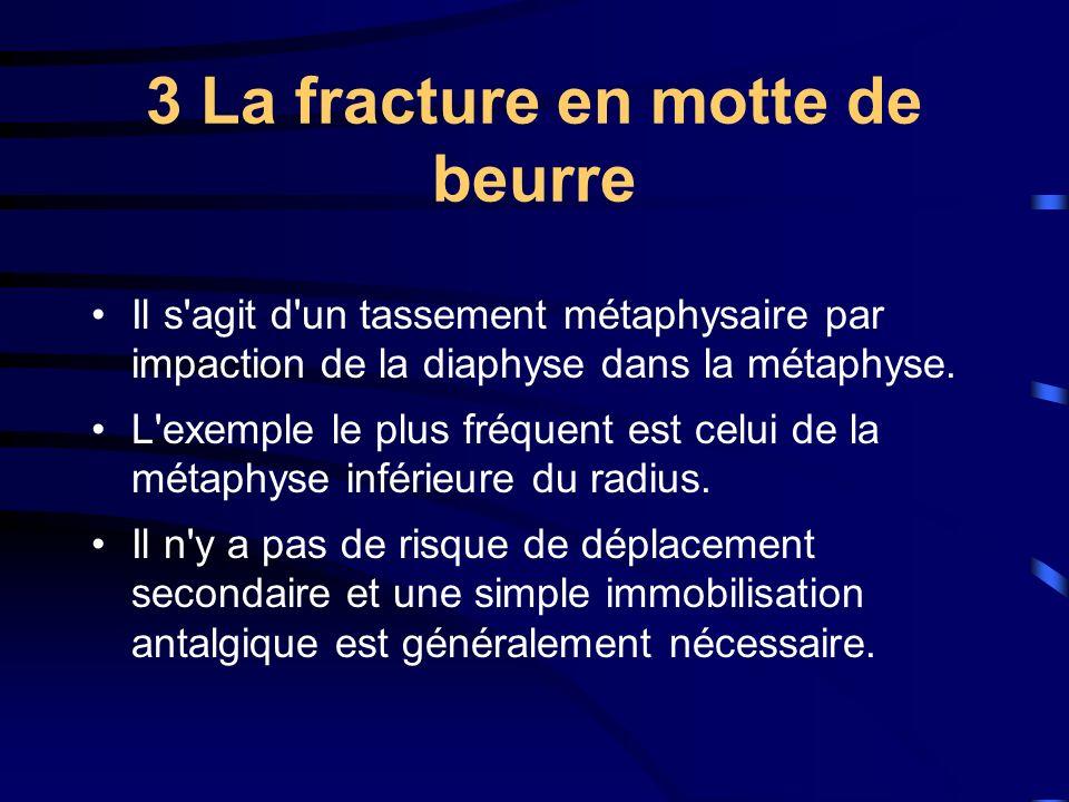 3 La fracture en motte de beurre Il s'agit d'un tassement métaphysaire par impaction de la diaphyse dans la métaphyse. L'exemple le plus fréquent est