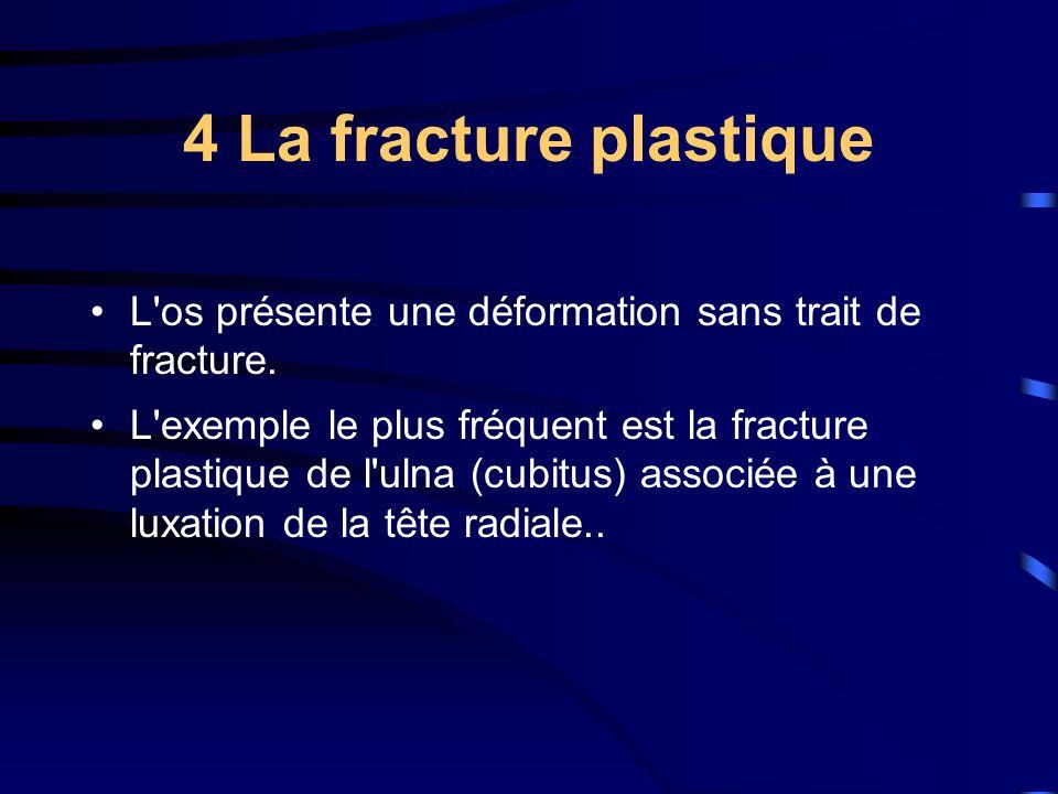 4 La fracture plastique L'os présente une déformation sans trait de fracture. L'exemple le plus fréquent est la fracture plastique de l'ulna (cubitus)