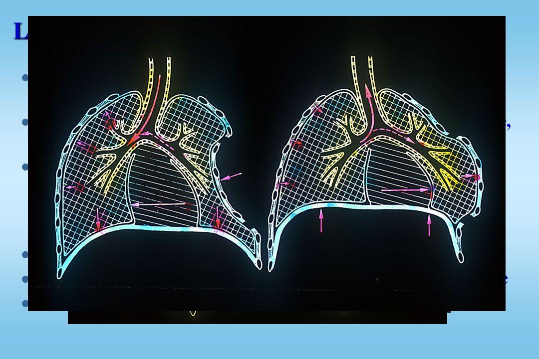 LÉSIONS PARIÉTALES : Fractures de côtes l Gravité dépend du terrain –1 à 3 fractures --> complication grave chez sujet âgé ou insuffisant respiratoire