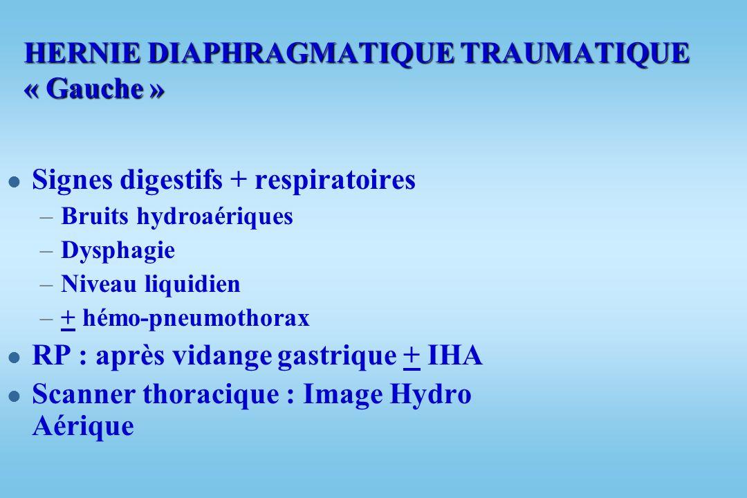 RUPTURE DU DIAPHRAGME l 3 % des traumatismes graves l Eliminer avant drainage thoracique l Coupole : –Gauche : 85 % d attente –Droite : 14 % d attente