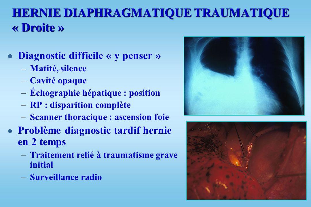 HERNIE DIAPHRAGMATIQUE TRAUMATIQUE « Gauche » l Signes digestifs + respiratoires –Bruits hydroaériques –Dysphagie –Niveau liquidien –+ hémo-pneumothor