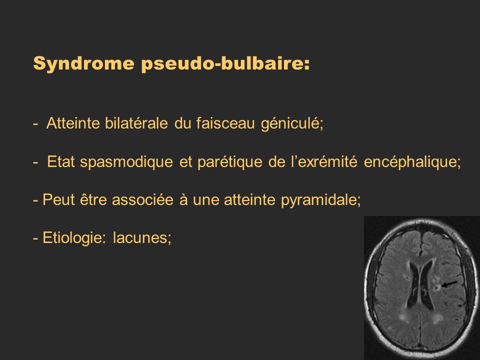 Syndrome pseudo-bulbaire: - Atteinte bilatérale du faisceau géniculé; - Etat spasmodique et parétique de lexrémité encéphalique; - Peut être associée