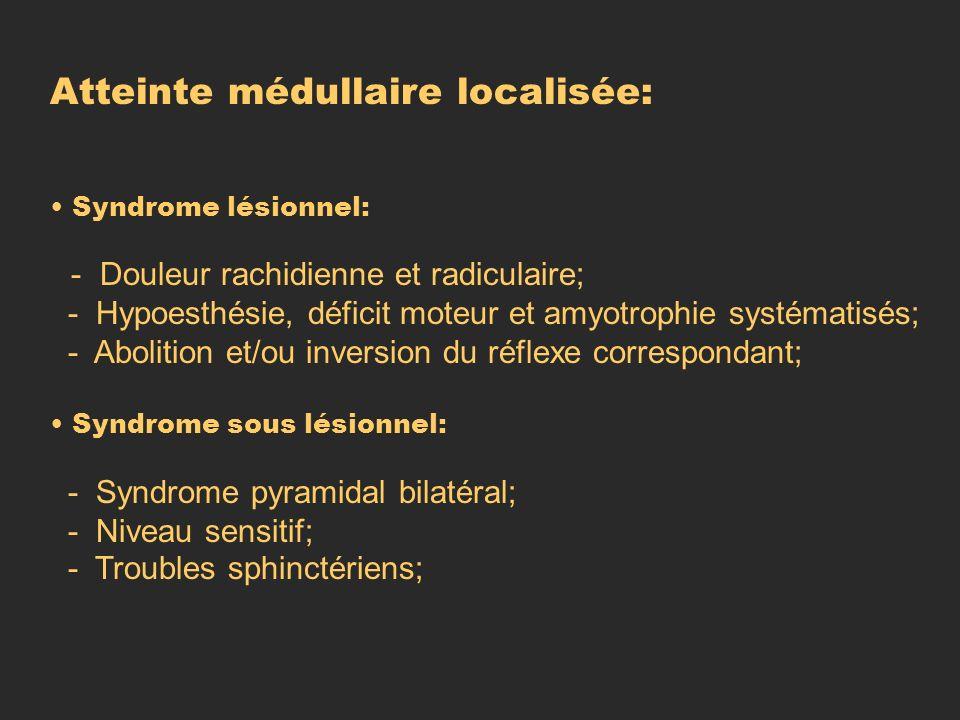 Atteinte médullaire localisée: Syndrome lésionnel: - Douleur rachidienne et radiculaire; - Hypoesthésie, déficit moteur et amyotrophie systématisés; -