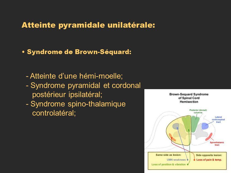 Atteinte pyramidale unilatérale: Syndrome de Brown-Séquard: - Atteinte dune hémi-moelle; - Syndrome pyramidal et cordonal postérieur ipsilatéral; - Sy