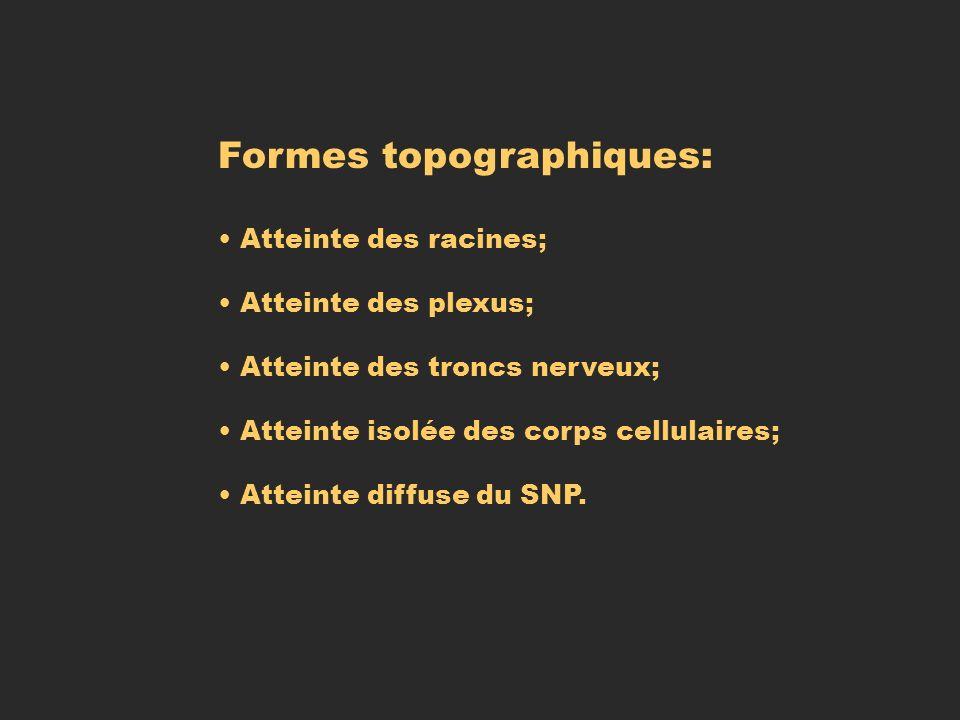 Formes topographiques: Atteinte des racines; Atteinte des plexus; Atteinte des troncs nerveux; Atteinte isolée des corps cellulaires; Atteinte diffuse