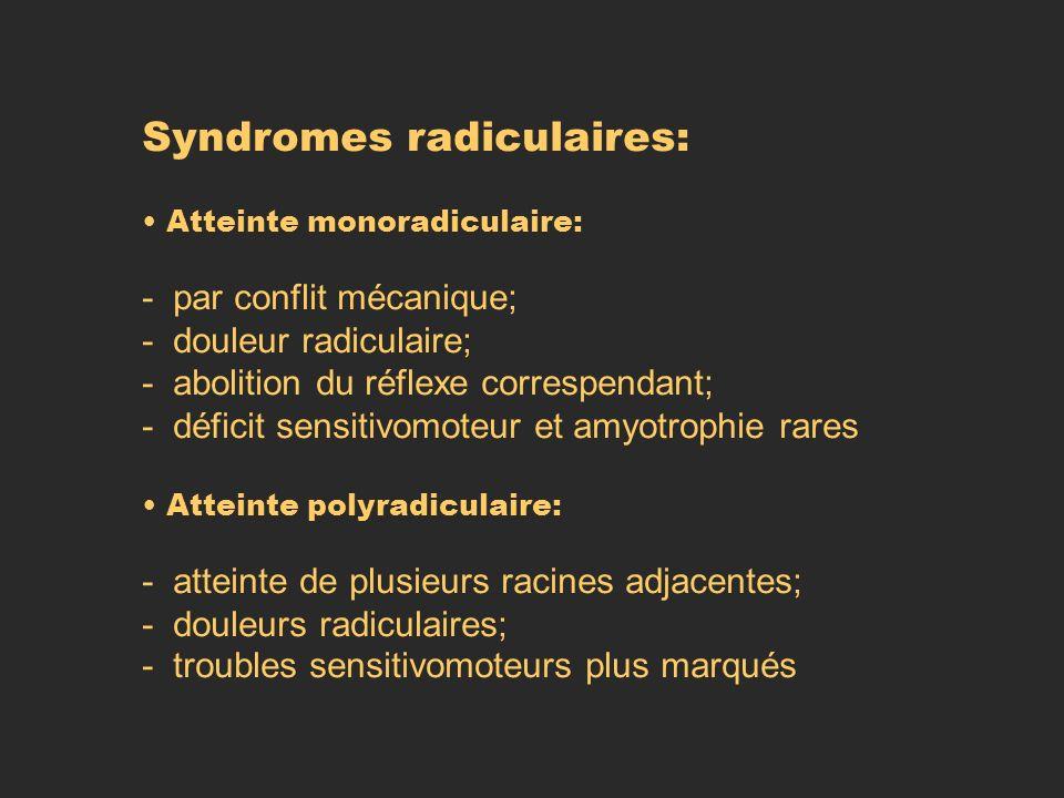 Syndromes radiculaires: Atteinte monoradiculaire: - par conflit mécanique; - douleur radiculaire; - abolition du réflexe correspendant; - déficit sens