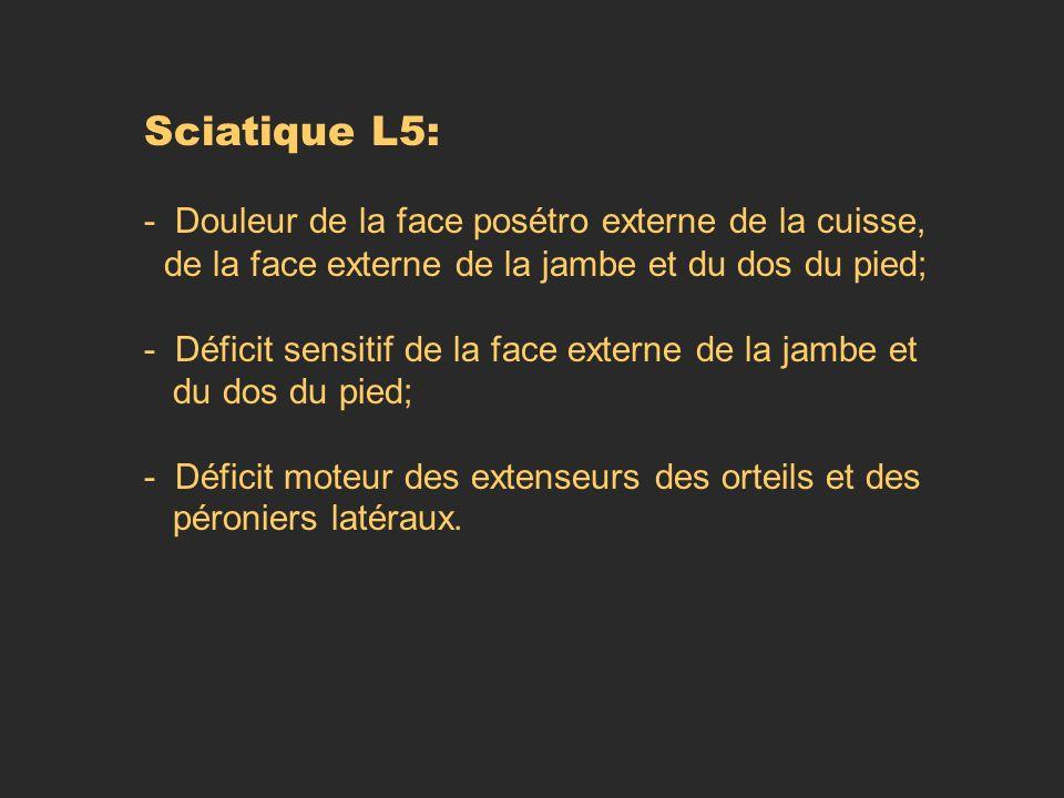 Sciatique L5: - Douleur de la face posétro externe de la cuisse, de la face externe de la jambe et du dos du pied; - Déficit sensitif de la face exter