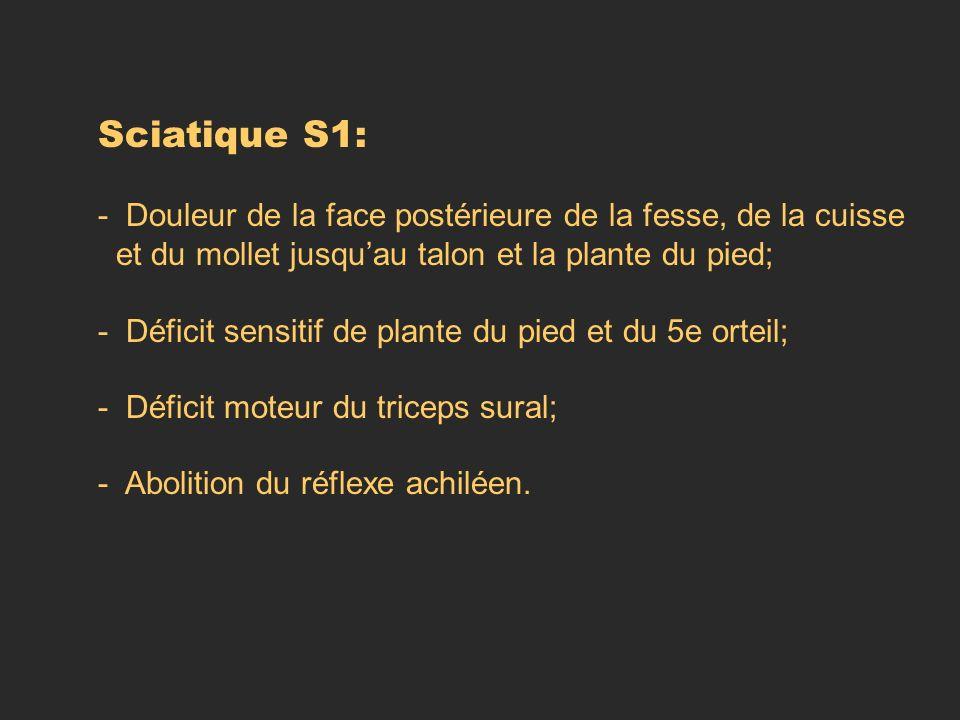 Sciatique S1: - Douleur de la face postérieure de la fesse, de la cuisse et du mollet jusquau talon et la plante du pied; - Déficit sensitif de plante
