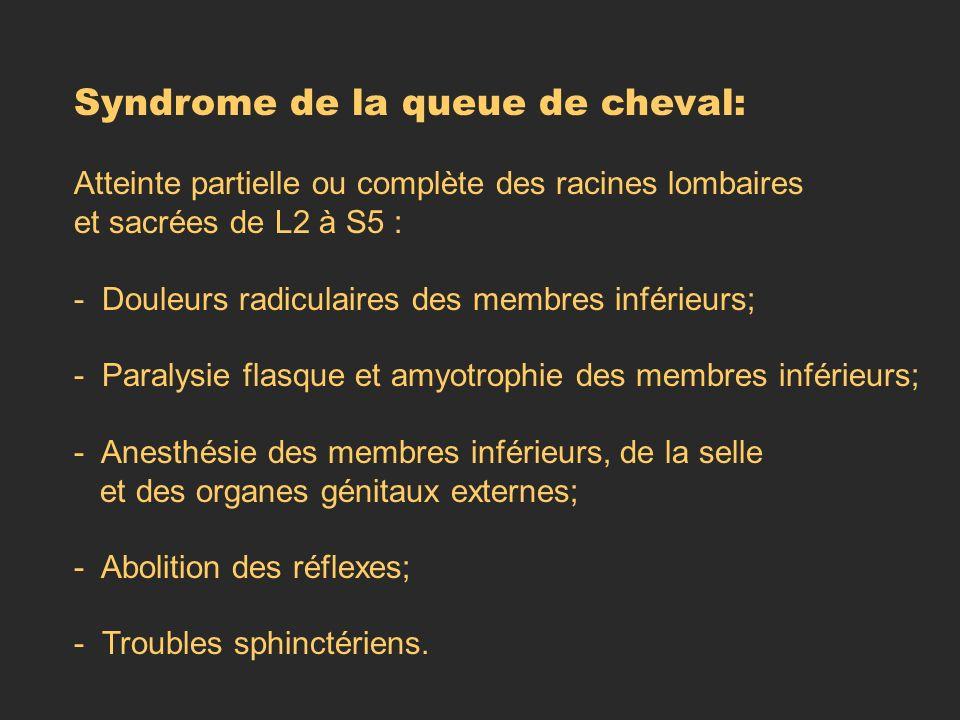 Syndrome de la queue de cheval: Atteinte partielle ou complète des racines lombaires et sacrées de L2 à S5 : - Douleurs radiculaires des membres infér