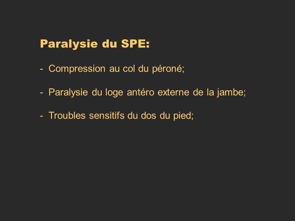 Paralysie du SPE: - Compression au col du péroné; - Paralysie du loge antéro externe de la jambe; - Troubles sensitifs du dos du pied;