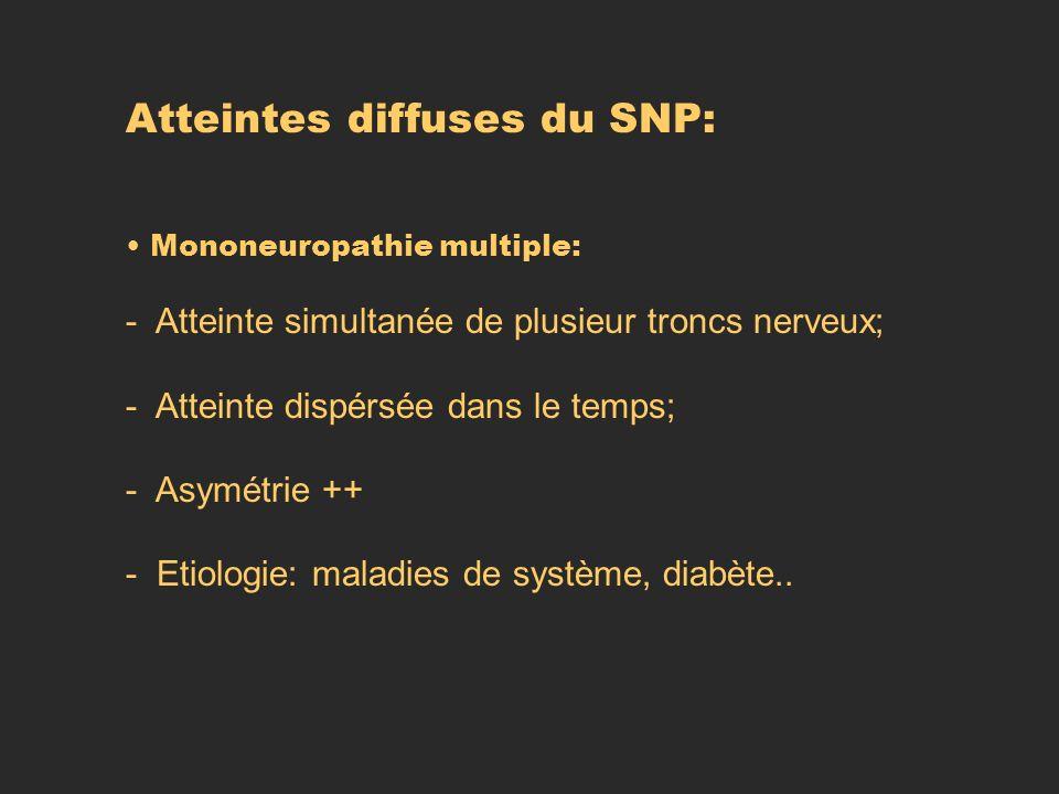 Atteintes diffuses du SNP: Mononeuropathie multiple: - Atteinte simultanée de plusieur troncs nerveux; - Atteinte dispérsée dans le temps; - Asymétrie