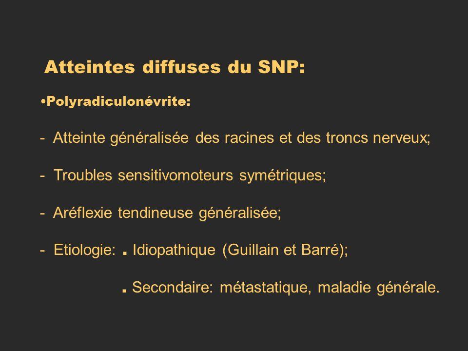 Atteintes diffuses du SNP: Polyradiculonévrite: - Atteinte généralisée des racines et des troncs nerveux; - Troubles sensitivomoteurs symétriques; - A