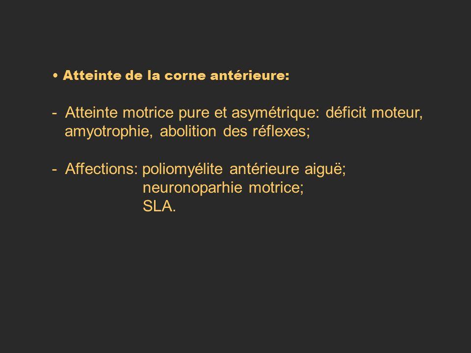 Atteinte de la corne antérieure: - Atteinte motrice pure et asymétrique: déficit moteur, amyotrophie, abolition des réflexes; - Affections: poliomyéli