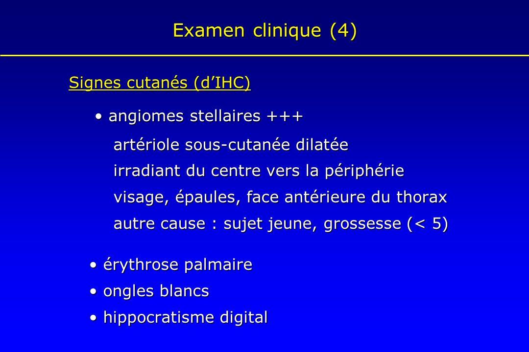 Examen clinique (4) Signes cutanés (dIHC) angiomes stellaires +++ angiomes stellaires +++ artériole sous-cutanée dilatée irradiant du centre vers la p