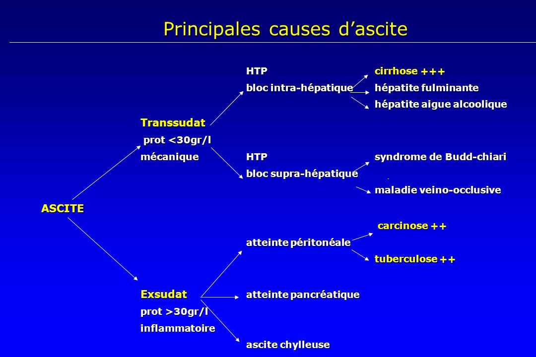 HTP cirrhose +++ HTP cirrhose +++ bloc intra-hépatiquehépatite fulminante bloc intra-hépatiquehépatite fulminante hépatite aigue alcoolique Transsudat