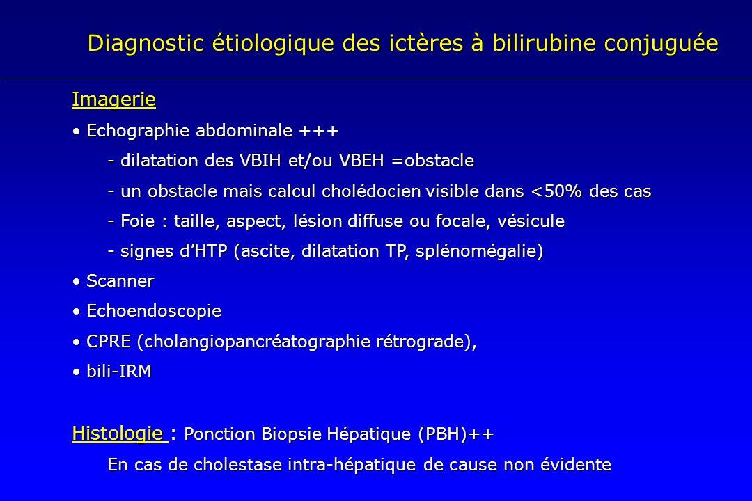 Diagnostic étiologique des ictères à bilirubine conjuguée Imagerie Echographie abdominale +++ Echographie abdominale +++ - dilatation des VBIH et/ou V