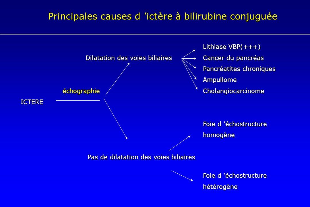 Lithiase VBP(+++) Dilatation des voies biliairesCancer du pancréas Pancréatites chroniques Ampullome échographie Cholangiocarcinome échographie Cholan