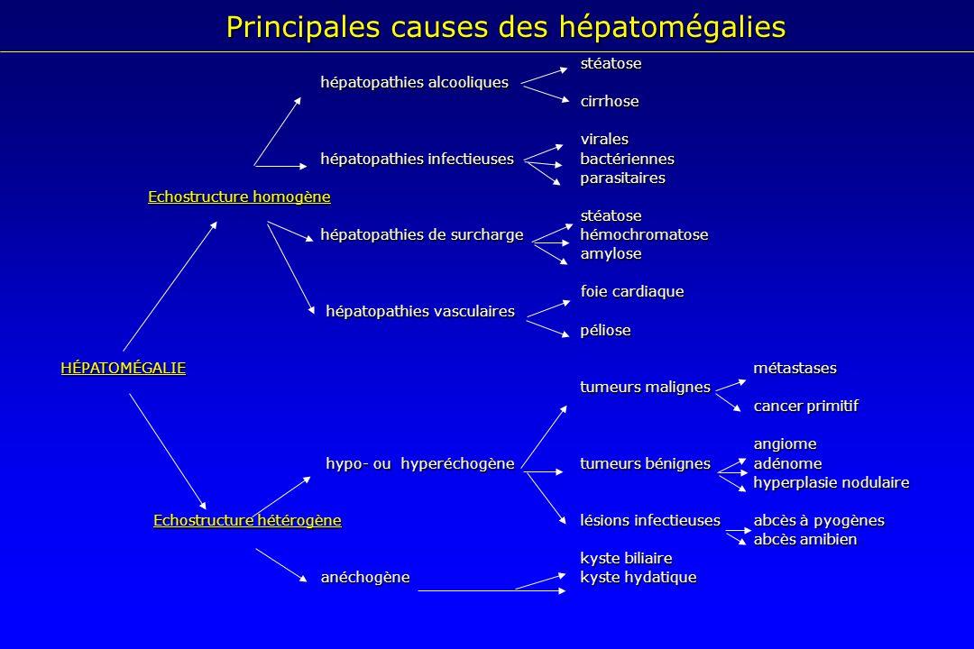 Principales causes des hépatomégalies stéatose stéatose hépatopathies alcooliques cirrhosevirales hépatopathies infectieusesbactériennes hépatopathies