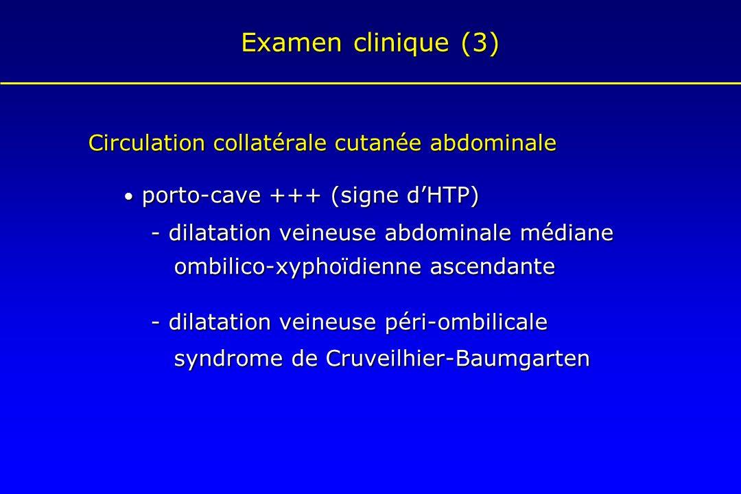 Examen clinique (3) Circulation collatérale cutanée abdominale porto-cave +++ (signe dHTP) porto-cave +++ (signe dHTP) - dilatation veineuse abdominal