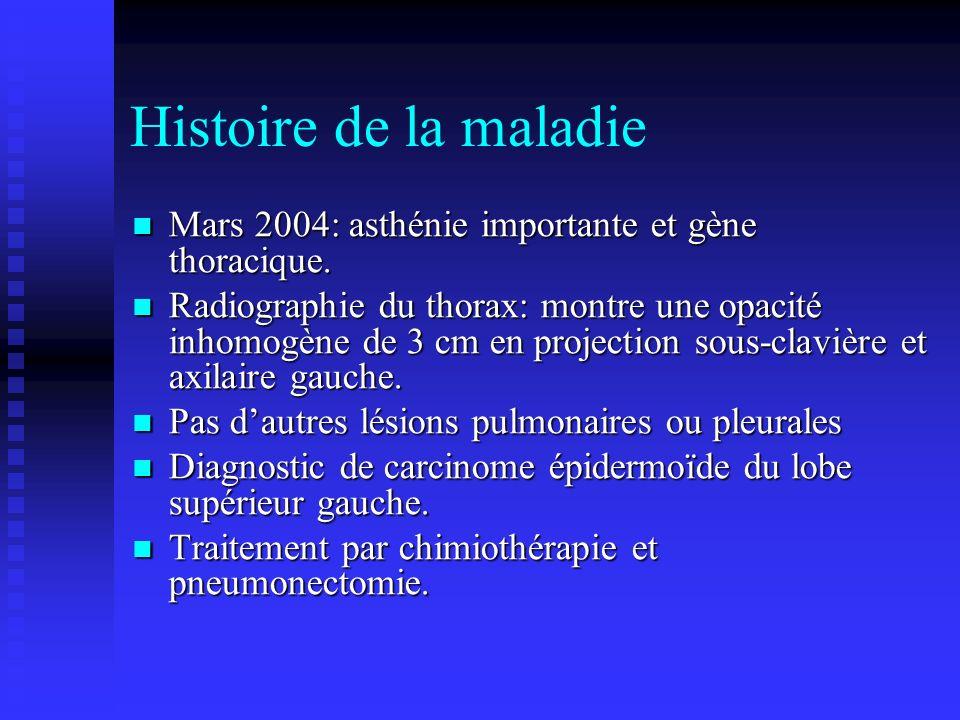 Histoire de la maladie Mars 2004: asthénie importante et gène thoracique. Mars 2004: asthénie importante et gène thoracique. Radiographie du thorax: m