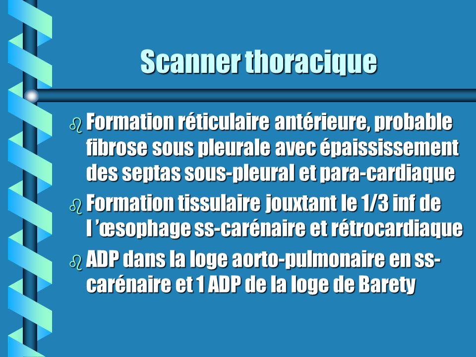 Examens complémentaires Examens complémentaires b Scanner et échographie abdominales: -pas de lésions hépatiques -pas de lésions hépatiques -pas d hypertrophie surrénalienne -pas d hypertrophie surrénalienne -anévrysme de l aorte sous-rénale de 35 mm de diamètre -anévrysme de l aorte sous-rénale de 35 mm de diamètre -ganglions, vésicule, pancréas, reins sans particularité -ganglions, vésicule, pancréas, reins sans particularité