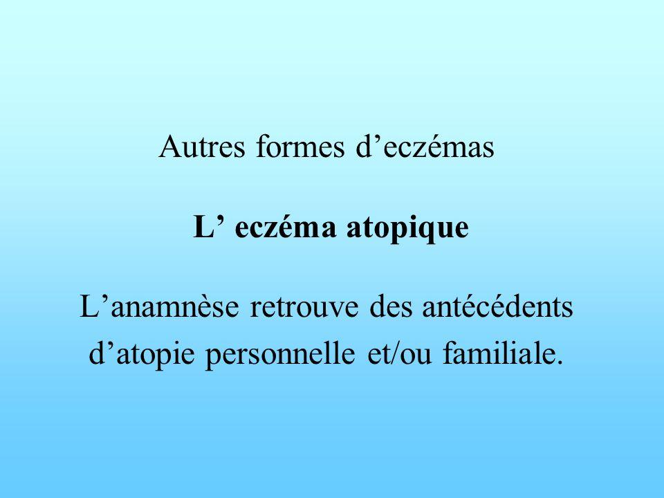 Autres formes deczémas L eczéma atopique Lanamnèse retrouve des antécédents datopie personnelle et/ou familiale.