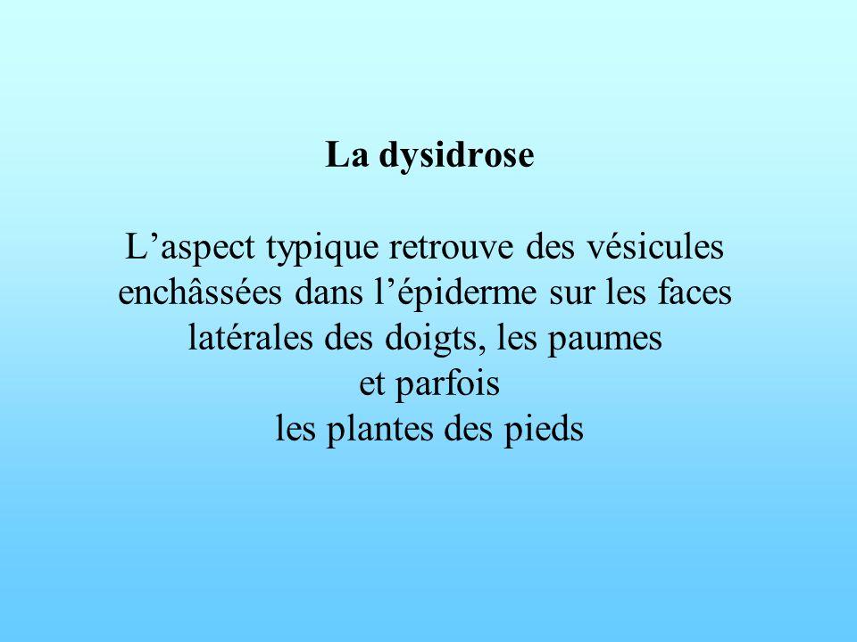 La dysidrose Laspect typique retrouve des vésicules enchâssées dans lépiderme sur les faces latérales des doigts, les paumes et parfois les plantes de