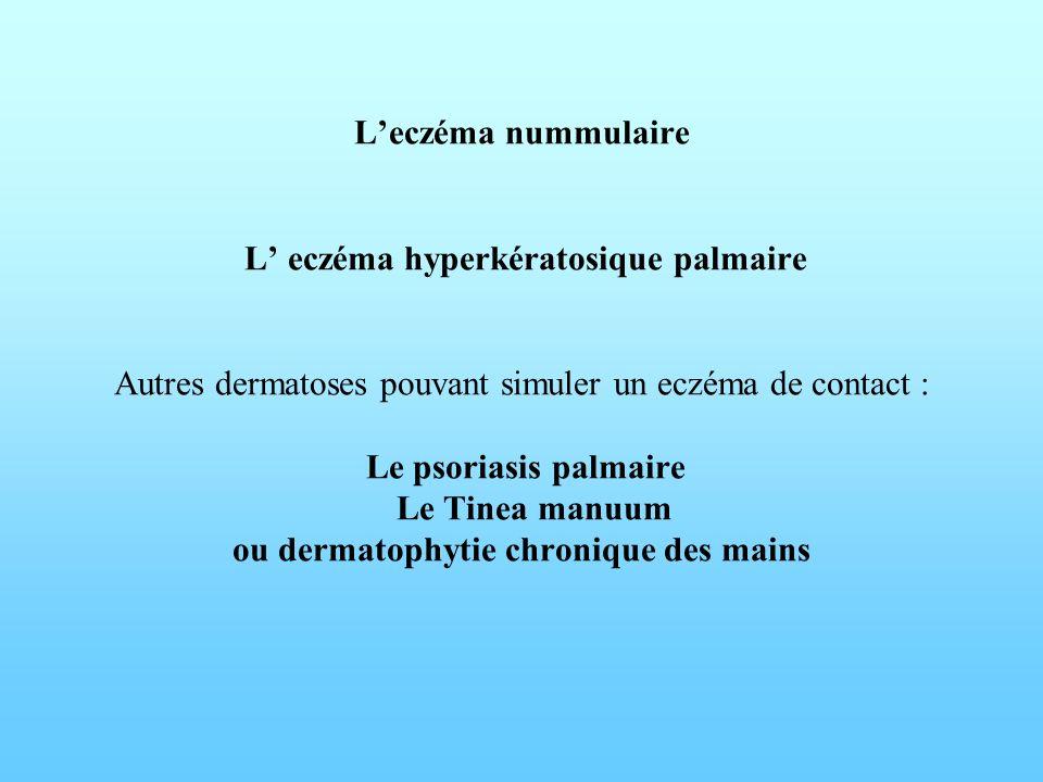 Leczéma nummulaire L eczéma hyperkératosique palmaire Autres dermatoses pouvant simuler un eczéma de contact : Le psoriasis palmaire Le Tinea manuum o