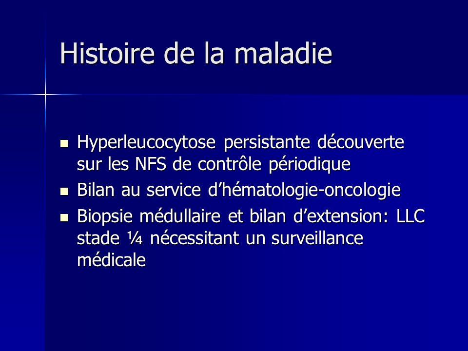 Histoire de la maladie Histoire de la maladie Hyperleucocytose persistante découverte sur les NFS de contrôle périodique Hyperleucocytose persistante