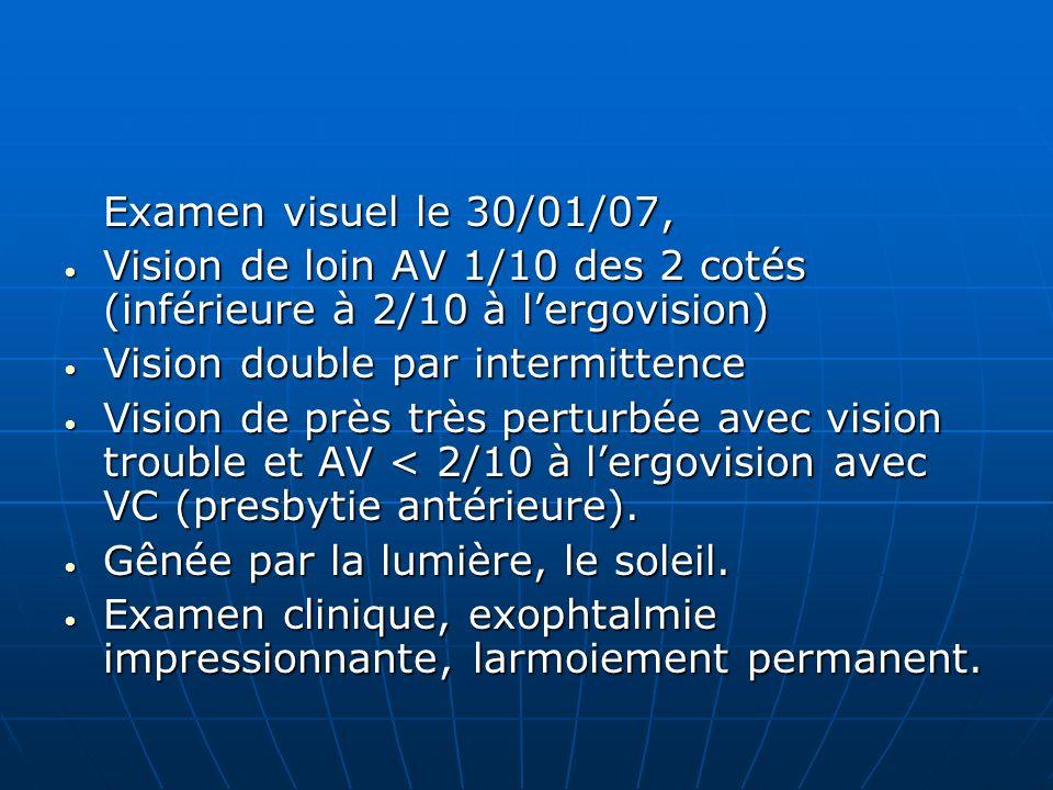Examen visuel le 30/01/07, Vision de loin AV 1/10 des 2 cotés (inférieure à 2/10 à lergovision) Vision de loin AV 1/10 des 2 cotés (inférieure à 2/10